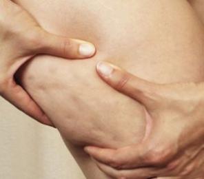 diminuire cellulite, eliminare cellulite