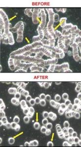 microscopia a campo oscuro